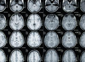 Epilessia, senza paura